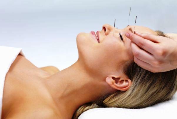 Akupunktur tedavisi nasıl yapılır? Etkileri nelerdir?