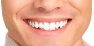 İmplant ve diş tedavisi hakkında her şey