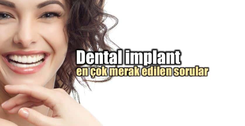 Dental implant ve diş tedavisi hakkında her şey
