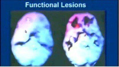 stres ve endişe ile amygdalanın uyarılmasının frontal bölgedeki kan akımı