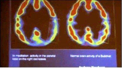 meditasyon sırasında beyinde paryetal bölge