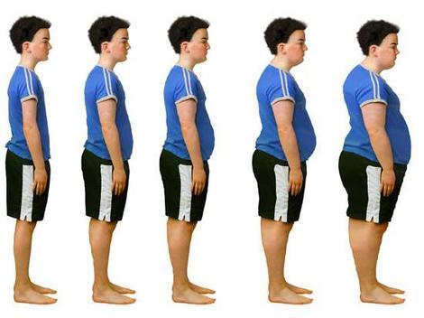 şişmanlık-obezite-kilo alma-genetik