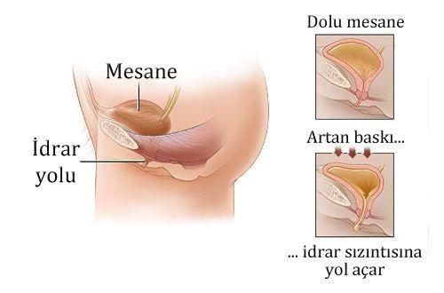 Sistit nedir, neden olur? Teşhis ve tedavisi nasıl yapılır?
