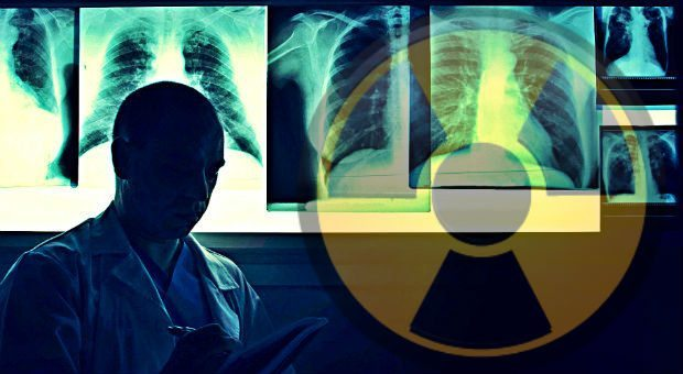 Erciyes Üniversitesi'nde 12 röntgen teknisyeninde tiroid kanseri