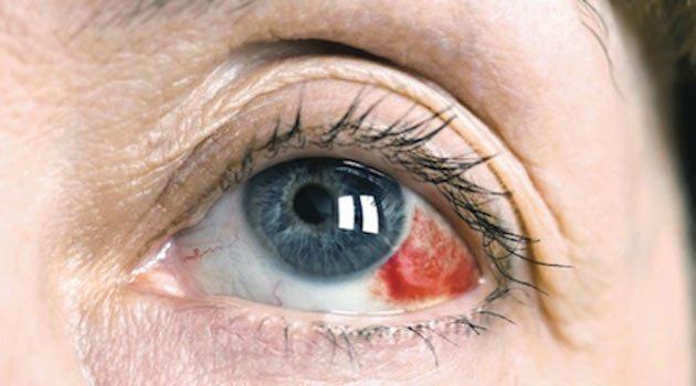 Gözde bir travma sonrası erken müdahalenin önemi