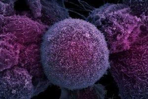 prostat kanseri belirtisi tedavisi