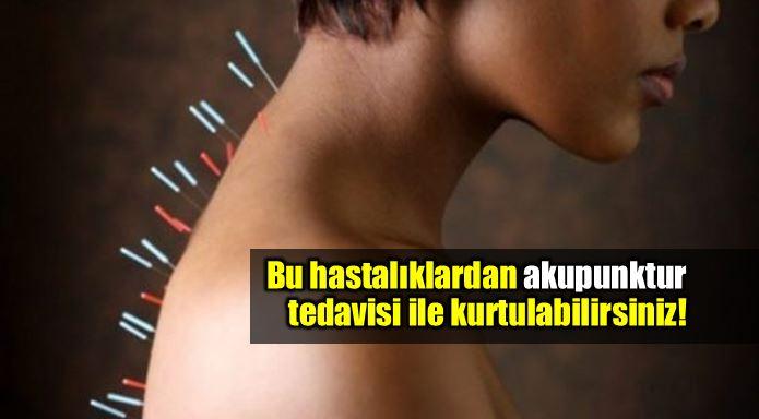 akupunktur nedir tedavi hastalıklar