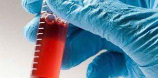 """Türk hematologlar """"Kordon Kanı"""" için buluştu"""