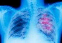 Akciğer kanseri belirtlileri nelerdir? İntratümöral kemoterapi nedir?