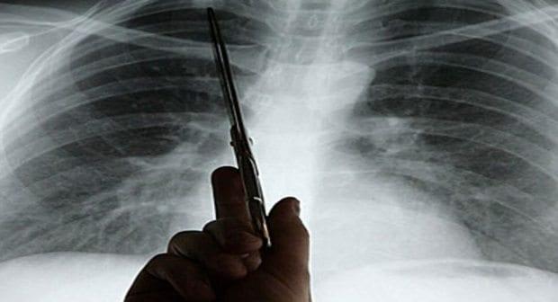 Akciğer Kanserinin 7 belirtisi nelerdir?