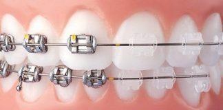 Ortodontik tedavi nedir? Diş tedavisi korkusuna lazerli çözüm