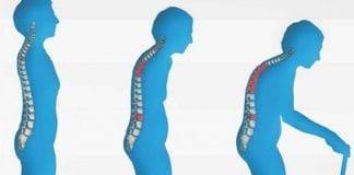 Menopoz kemiklerinizi eritmesin! Kemik erimesi tedavi edilebiliyor!
