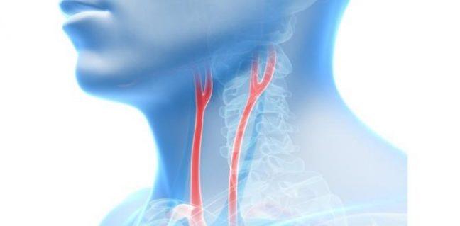 Şah damarı tıkanıklığı hastalığı nedir?