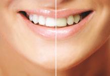 Diş beyazlatma seçenekleri nelerdir?