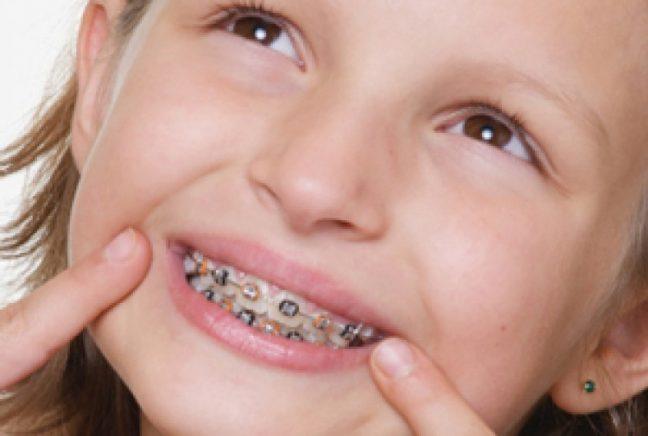 Diş teli tedavisi nedir?
