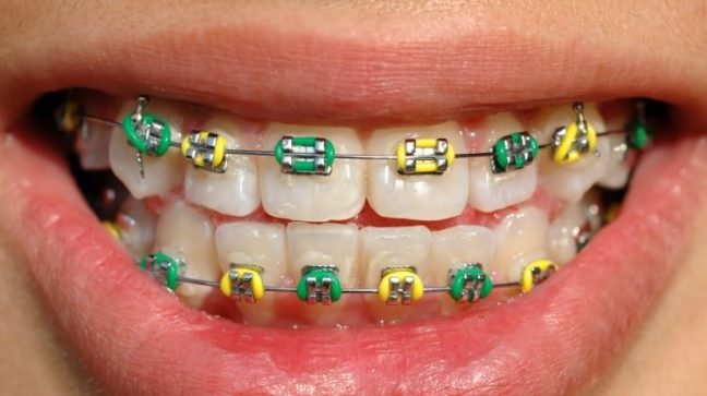 Diş teli tedavisi nedir? Hangi yaşlarda uygulanmalı?