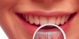 implant: Doğal dişlere en iyi alternatif!