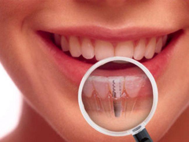 İmplant: Doğal dişlere en iyi alternatif!