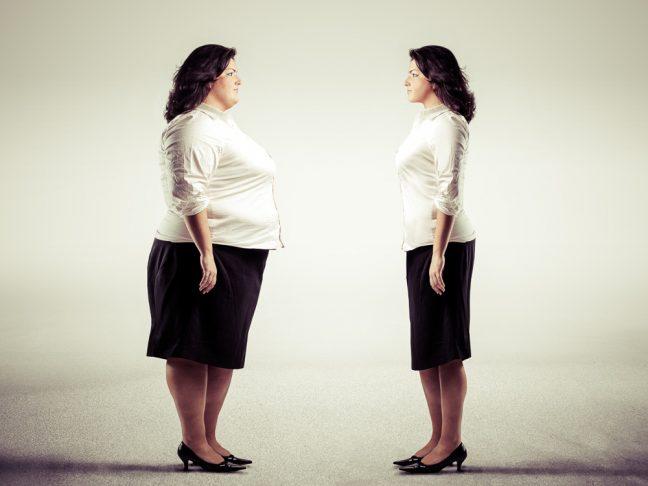 Obezite cerrahisi nedir? En uygun adaylar kimlerdir?