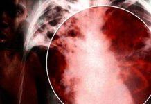 Tüberküloz (verem) belirtileri nelerdir? Tedavisi nasıldır?