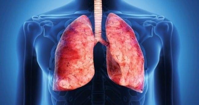 Bronşektazi nedir? Nasıl tedavi edilir?