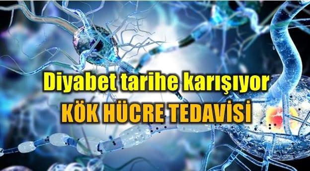 Diyabet tedavisinde devrim: Kök hücre yöntemi