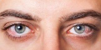 Göz kuruluğu neden kaynaklanır? Neler yapılmalı?