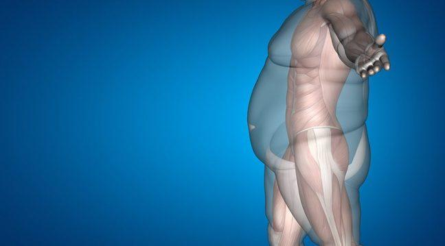 """Obezitenin adı değişiyor:""""Yağlanmaya Bağlı Kronik Hastalık"""""""
