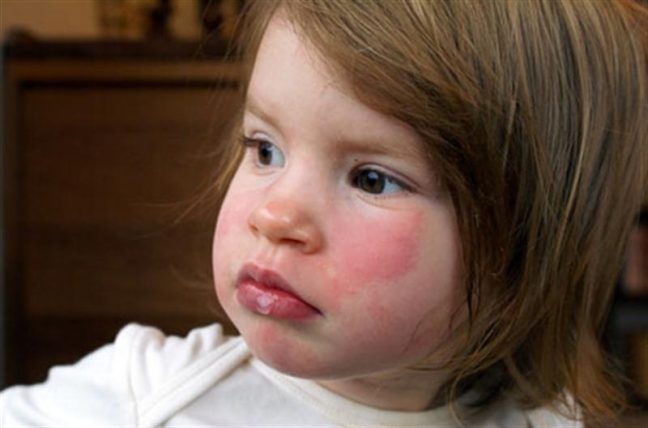 Tokatlanmış yanak sendromu nedir? Nasıl tedavi edilir?