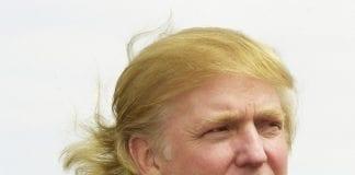 Trump'ın saçları peruk mu, saç ekimi mi?