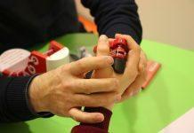 Ergoterapi uygulaması Down Sendromlu çocukların gelişimlerini destekliyor!