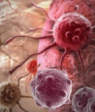 Kanser riskini azaltmanın 7 yolu nedir?