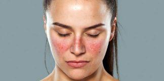 Kelebek hastalığı (Lupus) nedir? Hamileleri tehdit ediyor!
