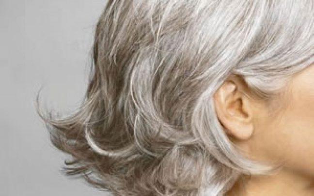 saç beyazlaması