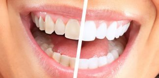 Diş beyazlatma dişlere zarar veriyor mu?