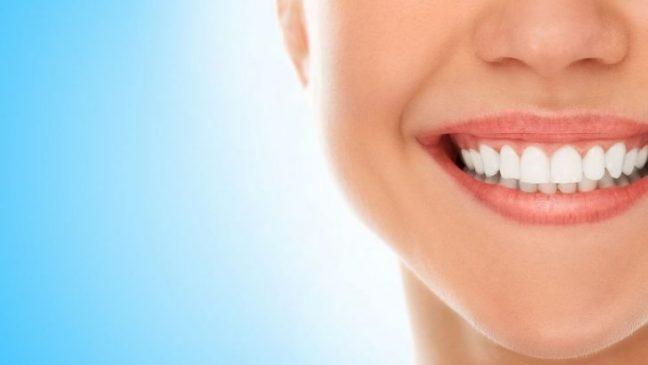 Evde diş beyazlatırken dişinize zarar vermeyin!