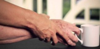 Parkinson hastalığının başlıca belirtileri nelerdir?