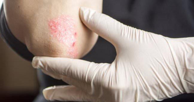 Sedef hastalığı belirtileri nelerdir? Tedavisi var mı?