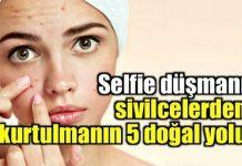 Selfie düşmanı sivilcelerden kurtulmanın 5 doğal yolu