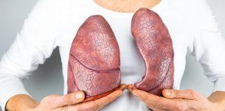 Tüberküloz nasıl bulaşır? Belirtileri ve tedavi şekli nasıldır?