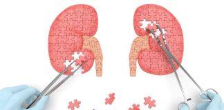 Böbrek sağlığınızı etkileyen 5 hastalığa dikkat!