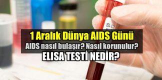 1 Aralık Dünya AIDS Günü: ELISA testi nedir?
