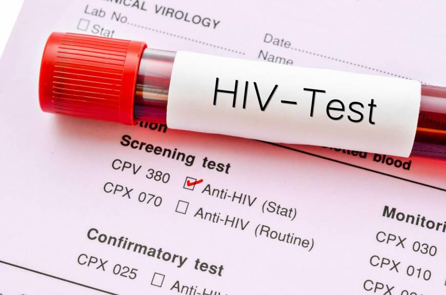 aids hiv nedir nasıl bulaşır AIDS HIV virüsü