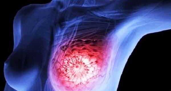 Meme kanseri: En çok merak edilen doğru ve yanlışlar