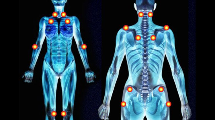 fibromiyalji belirtileri noktaları masajı tedavisi teşhisi