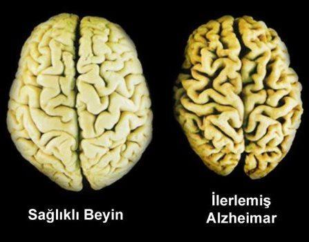 normal beyin alzheimer beyni