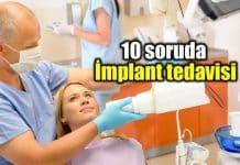 İmplant tedavisi implant nasıl yapılır? En çok merak edilen 10 soru