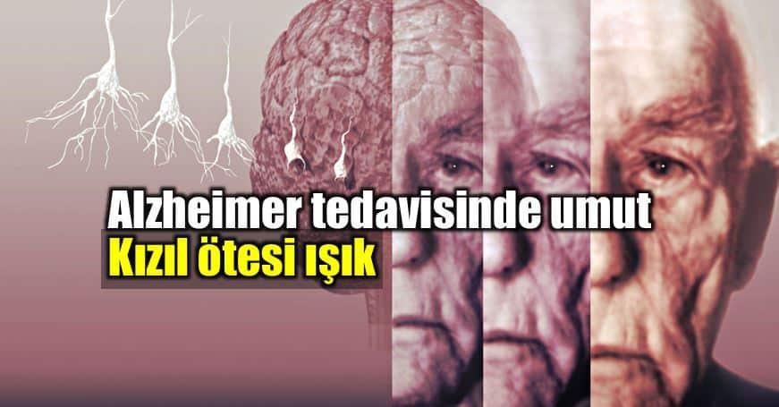 Alzheimer tedavisi için umut veren adım: Kızılötesi ışık