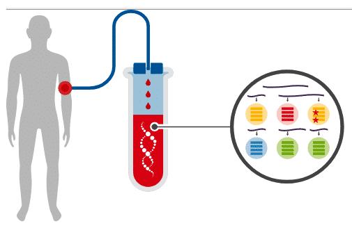 Liquid Biopsy likid biyopsi kanser tedavisi