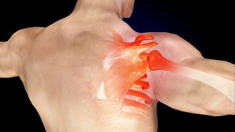 omuz ağrısı nedenleri omuz sıkışması belirtileri ne iyi gelir